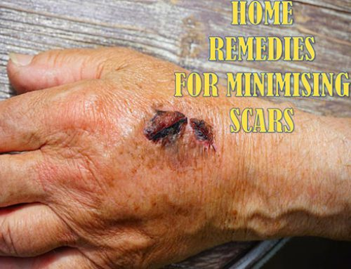 HOME REMEDIES FOR MINIMIZING SCARS